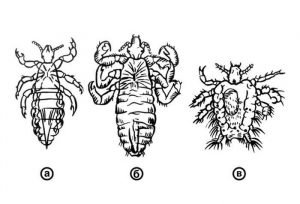 Type of Lice
